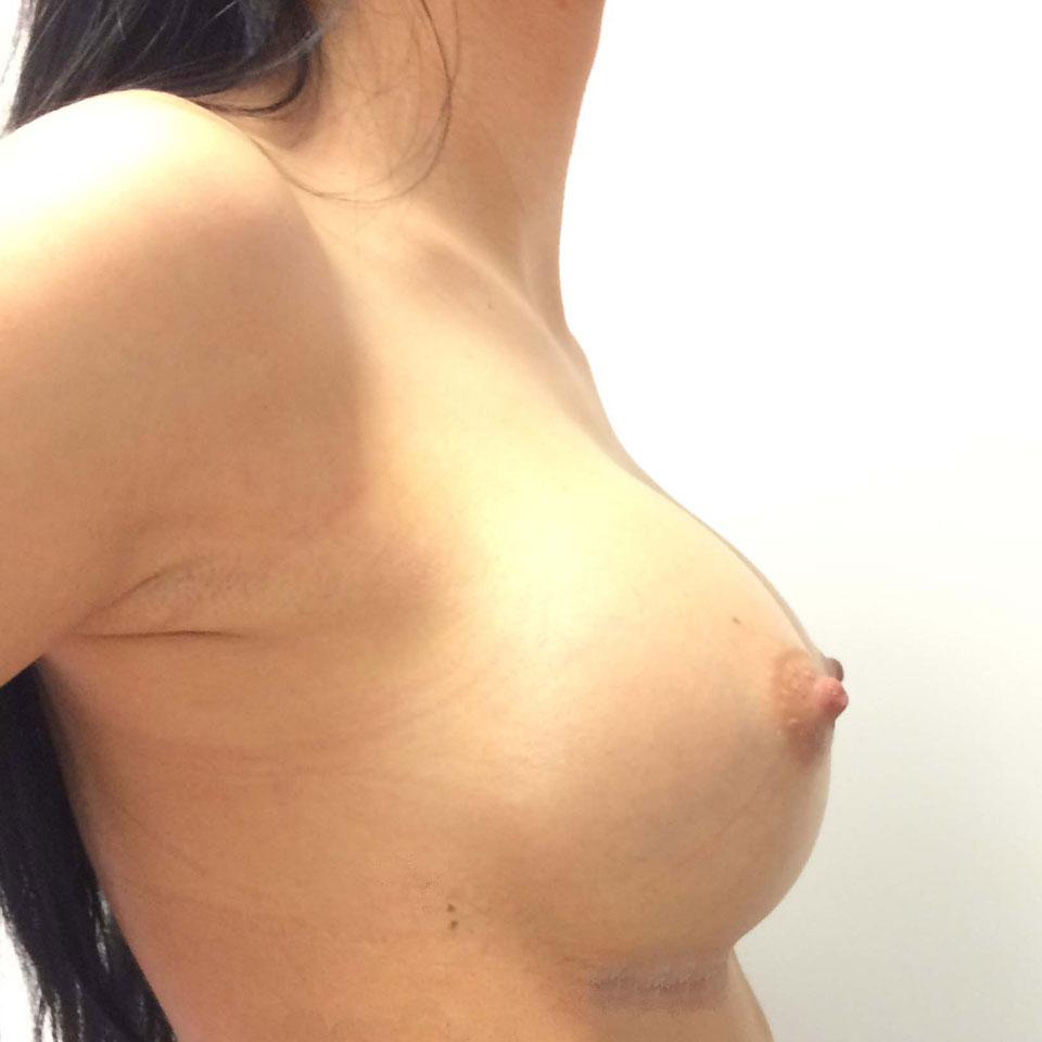 Implant mamar - Doctorul Hazim Elayan